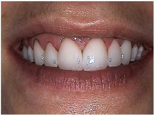 Tribeca Smile Makeover After