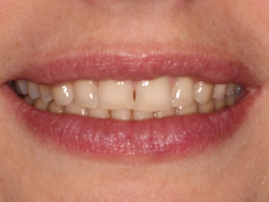 Cosmetic Smile Design Before