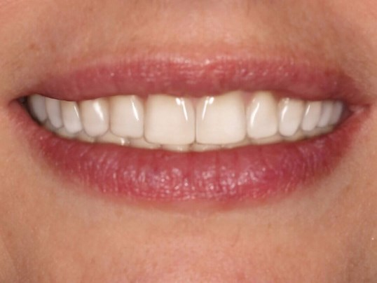 Cosmetic Smile Design After