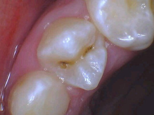 Cavity Repaired In New York Before