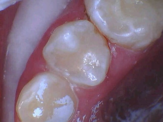 Cavity Repaired In New York After