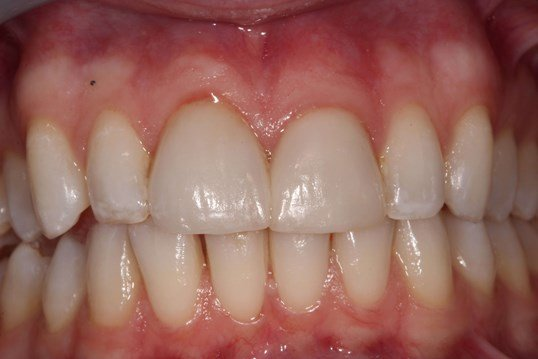 Repair Bonding On Front Tooth After