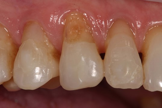 Tribeca Woman Smile Bonded Before