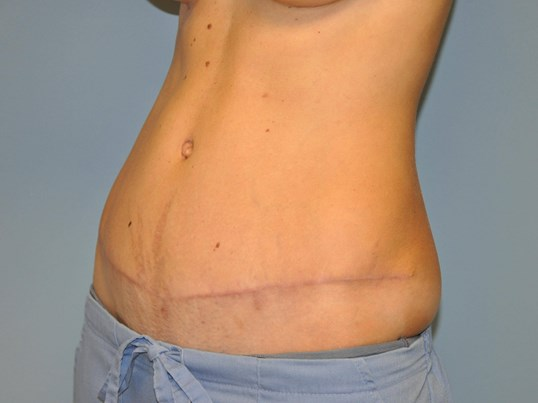 Oblique view After