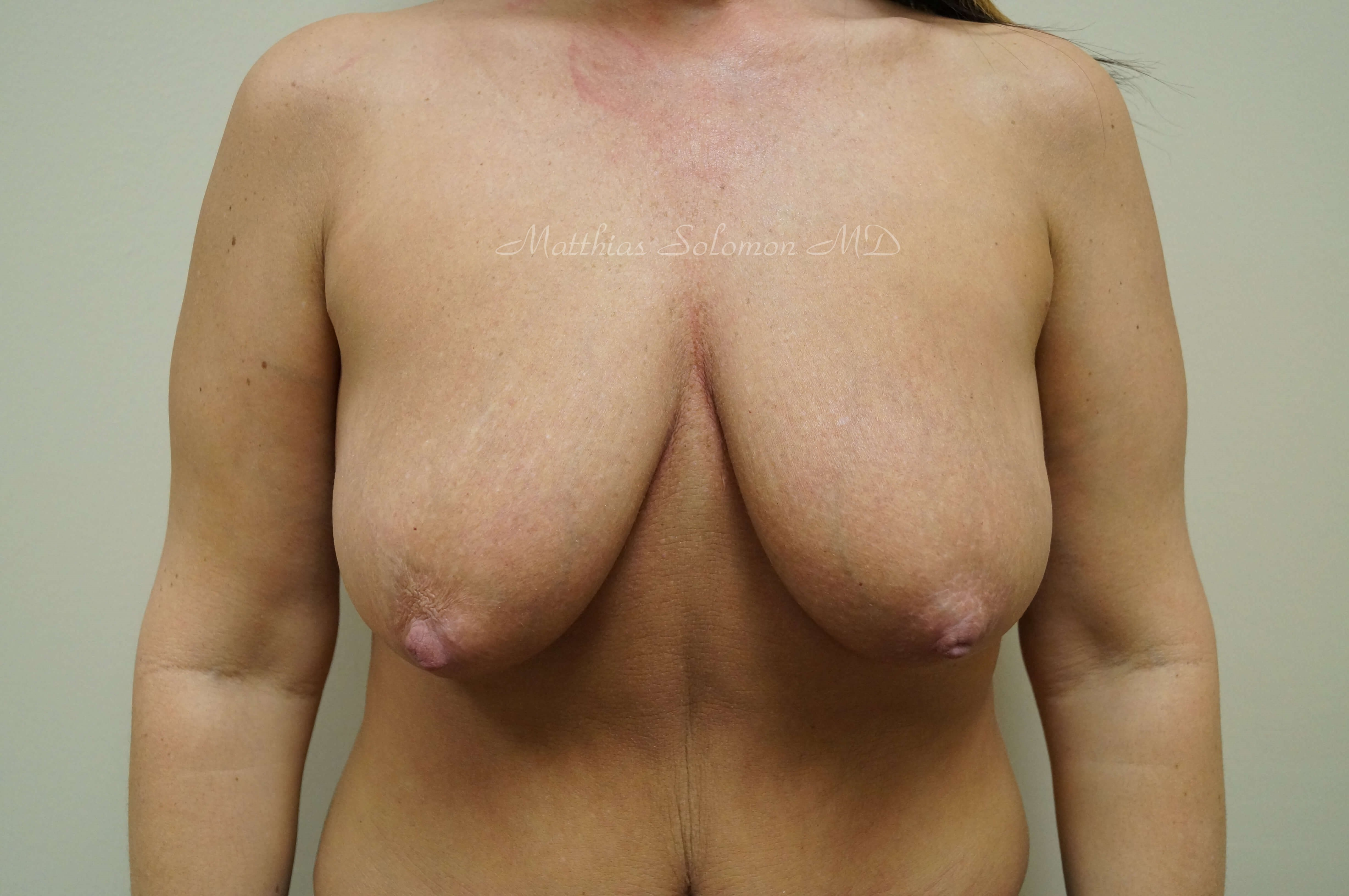 Front view, breasts Before