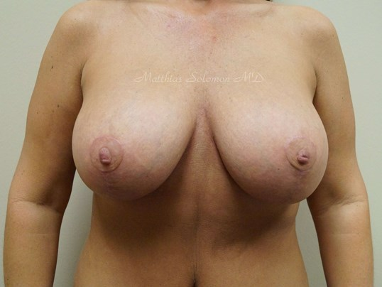 Front view, breasts After