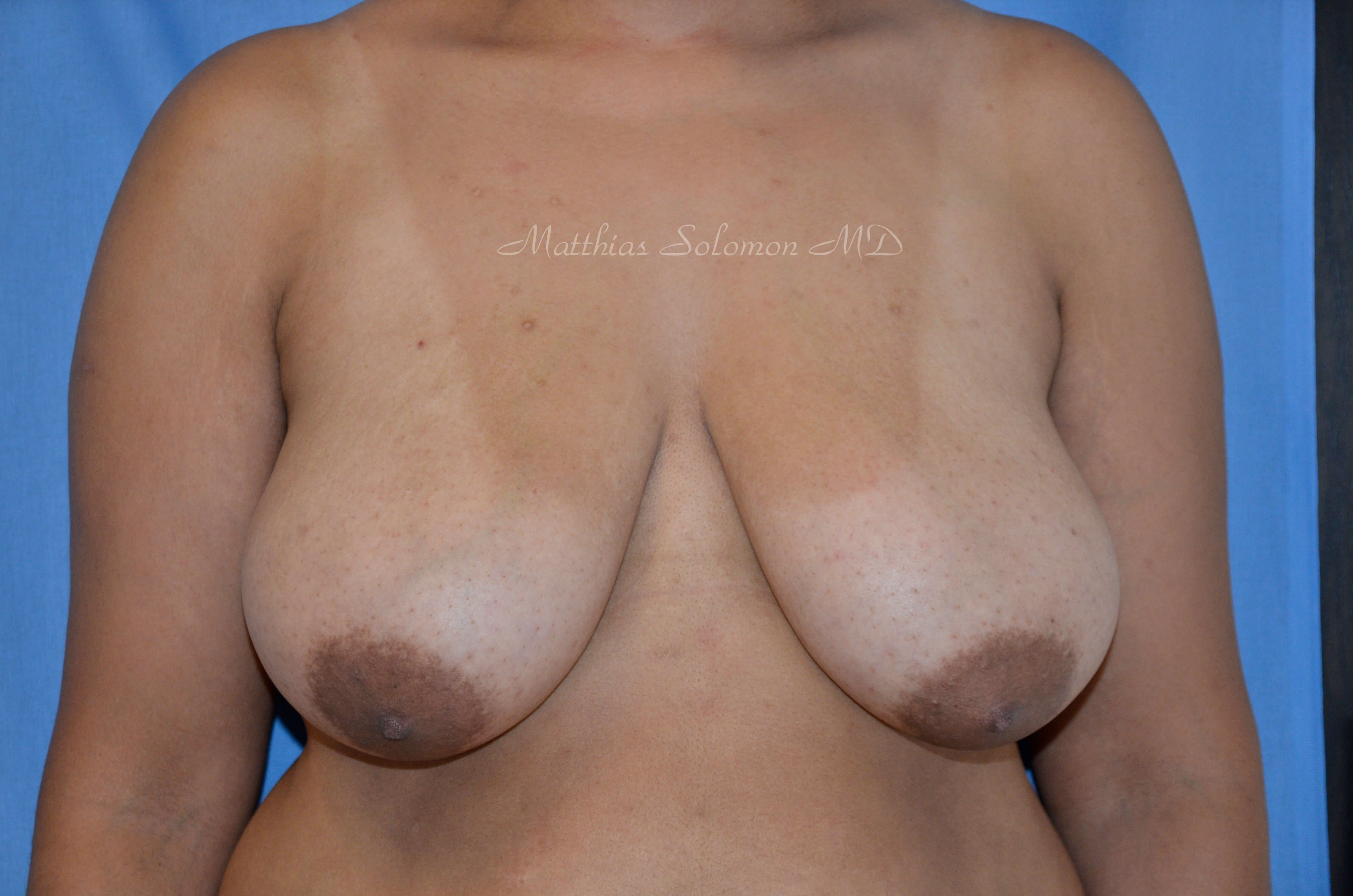 Front view, breast Before