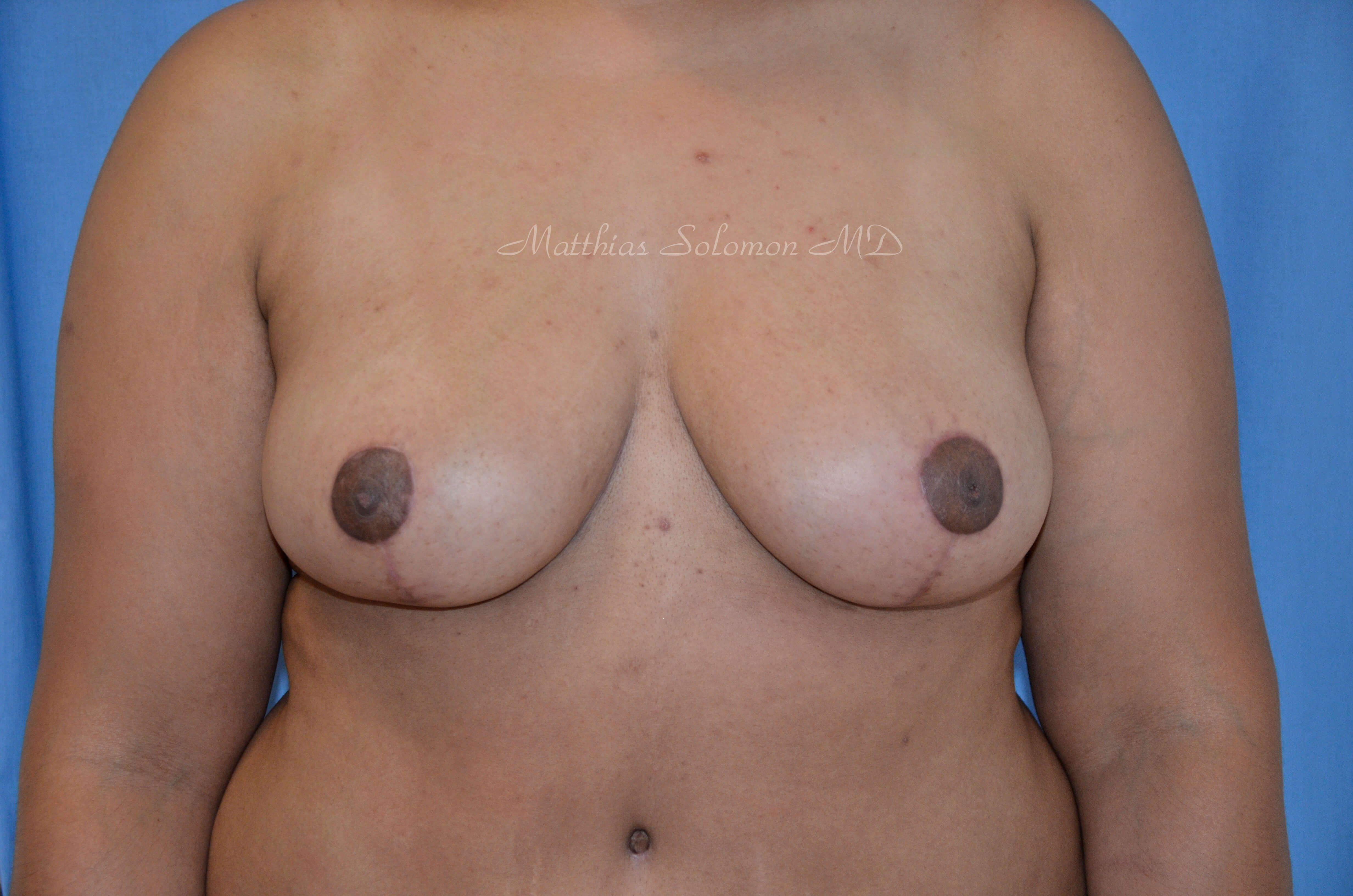 Front view, breast After