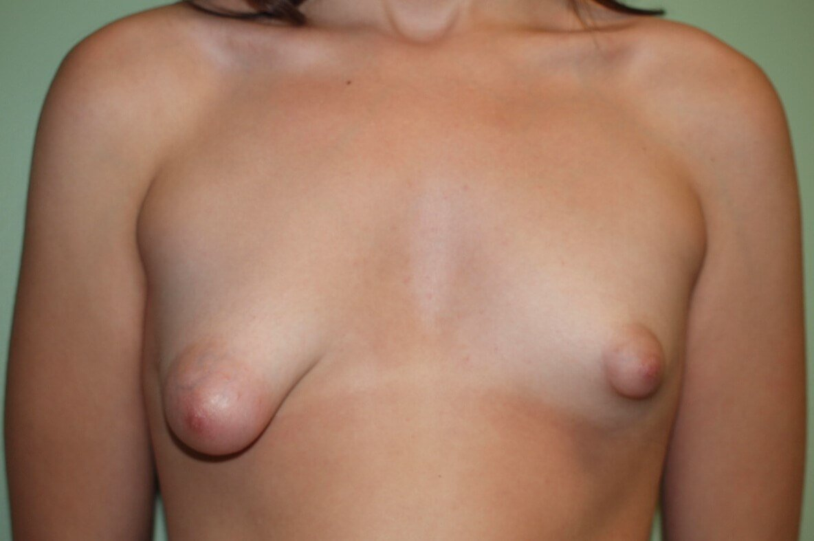 Tuberous Breasts Before