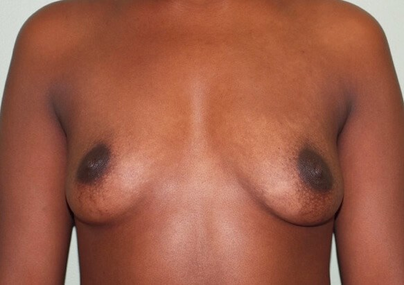 Saline Implants/Frontal View Before