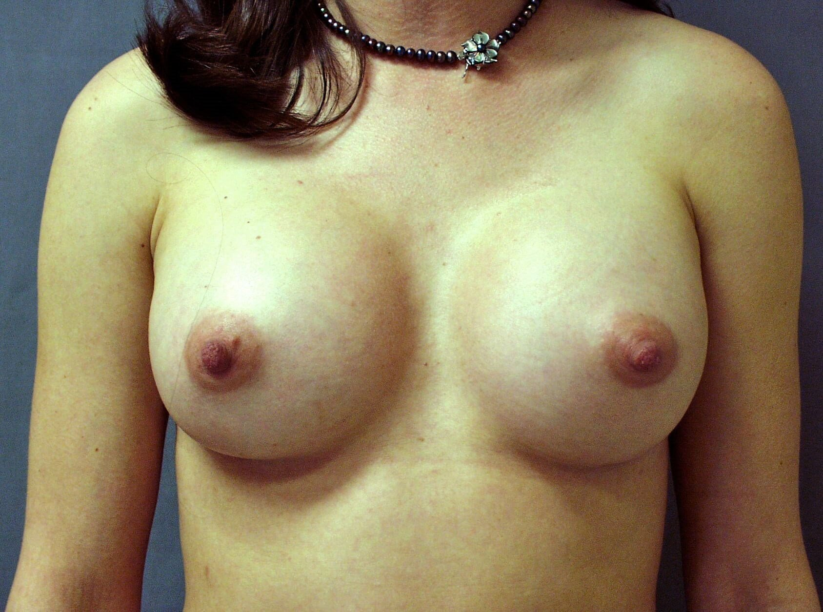 Shapely Silicone Implants After