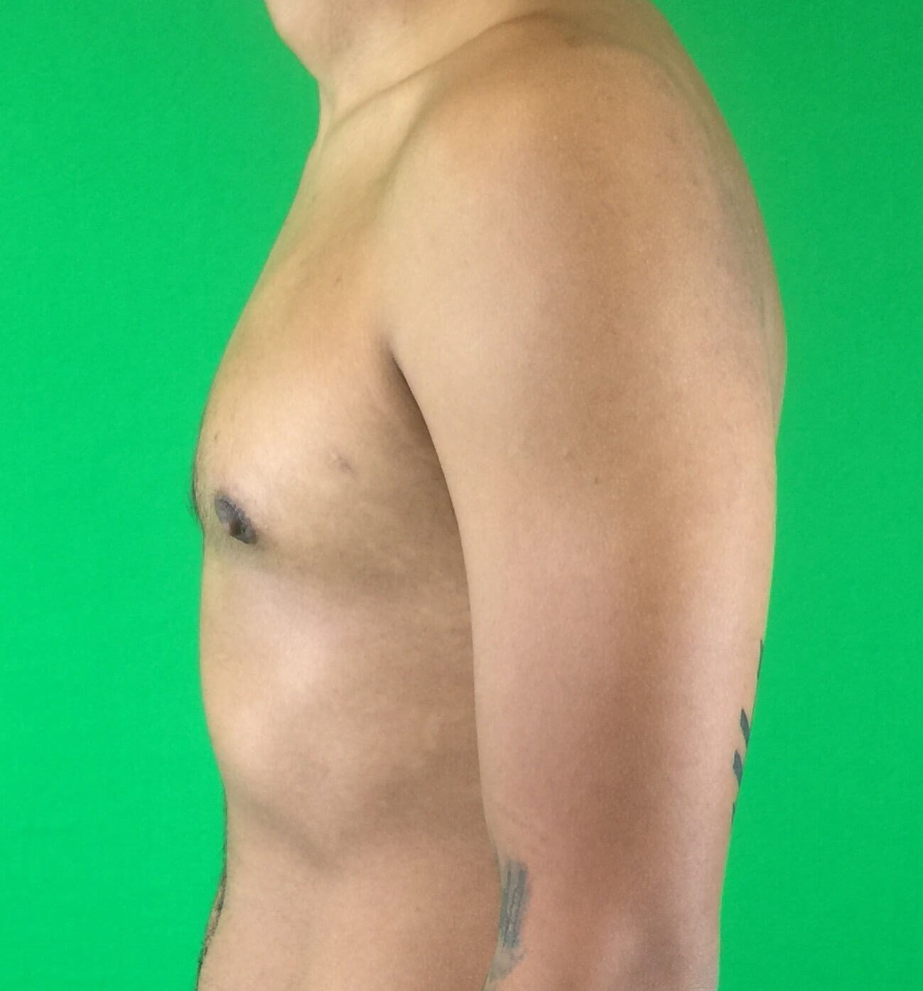 Gynecomastia Lateral After