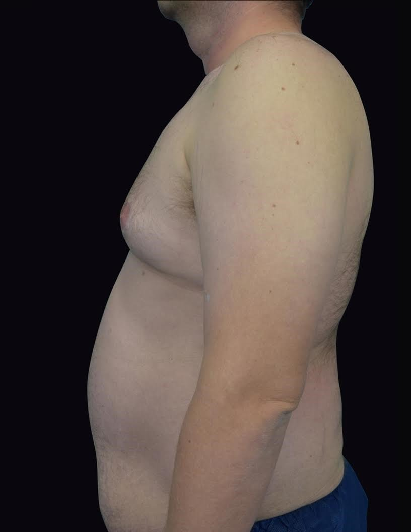 Side View Gynecomastia Before