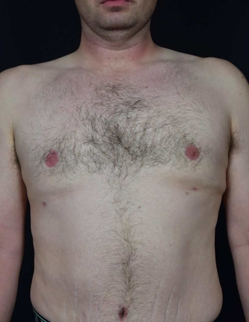 Front View Gynecomastia After