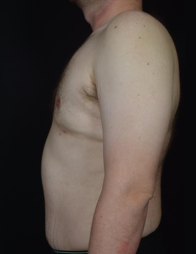 Side View Gynecomastia After