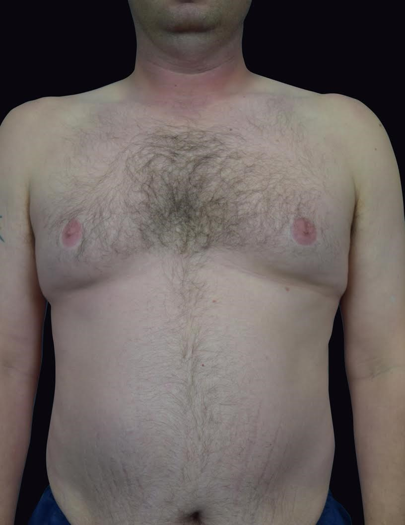 Front View Gynecomastia Before