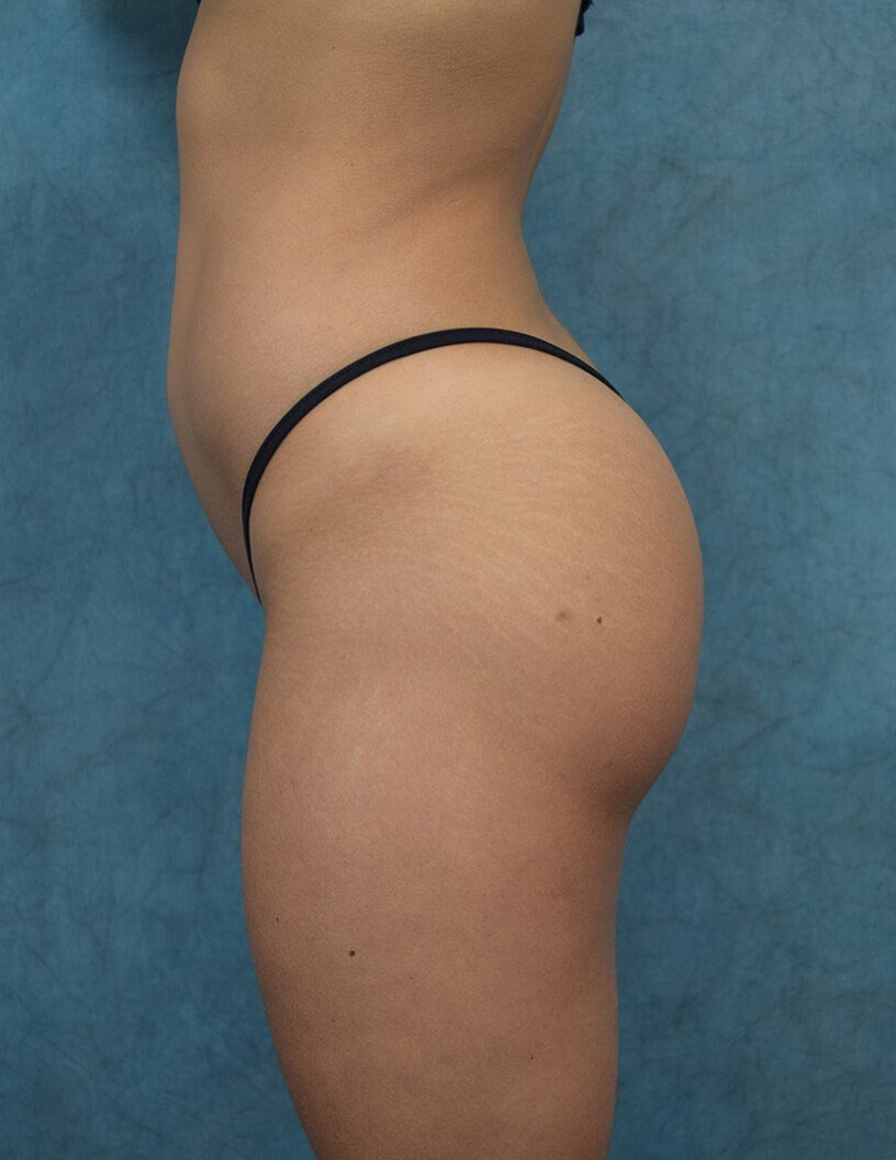Brazilian Butt Lift Side View After Fat Transfer