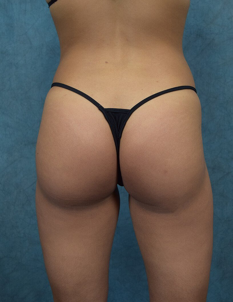 Brazilian Butt Lift Back View After