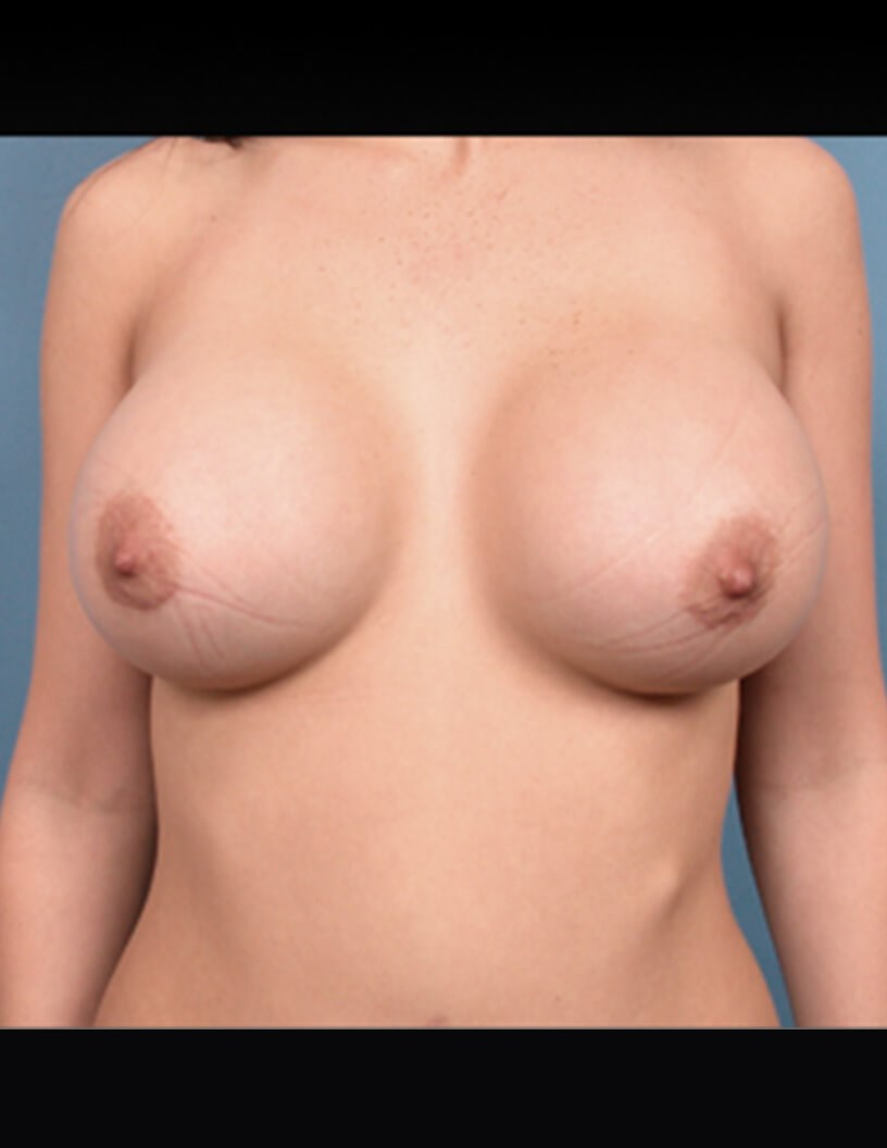 FRONT VIEW BREAST AUGMENTATION After