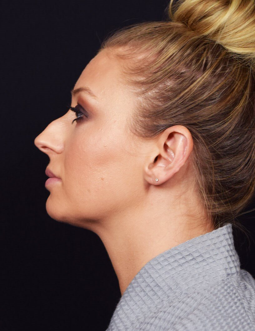SIDE VIEW OF RHINOPLASTY Before