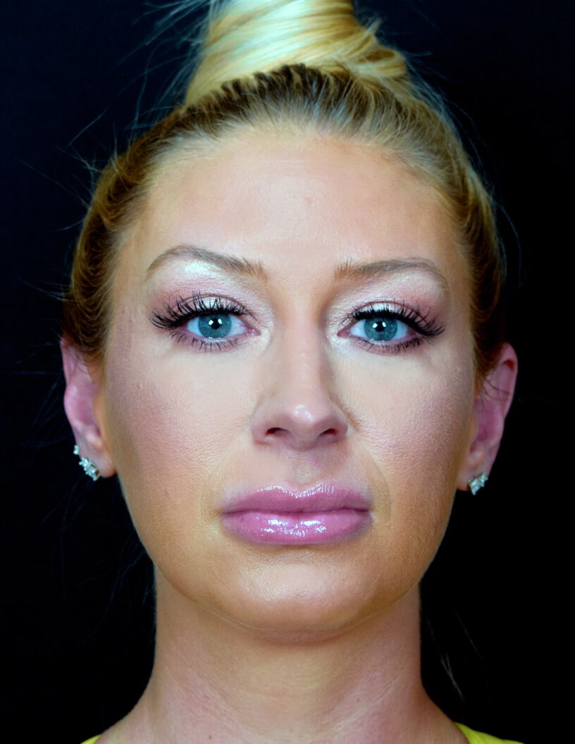 FRONT VIEW OF RHINOPLASTY After