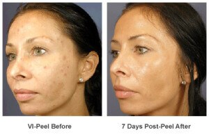 before and after vi peel