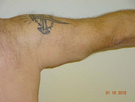 right arm After