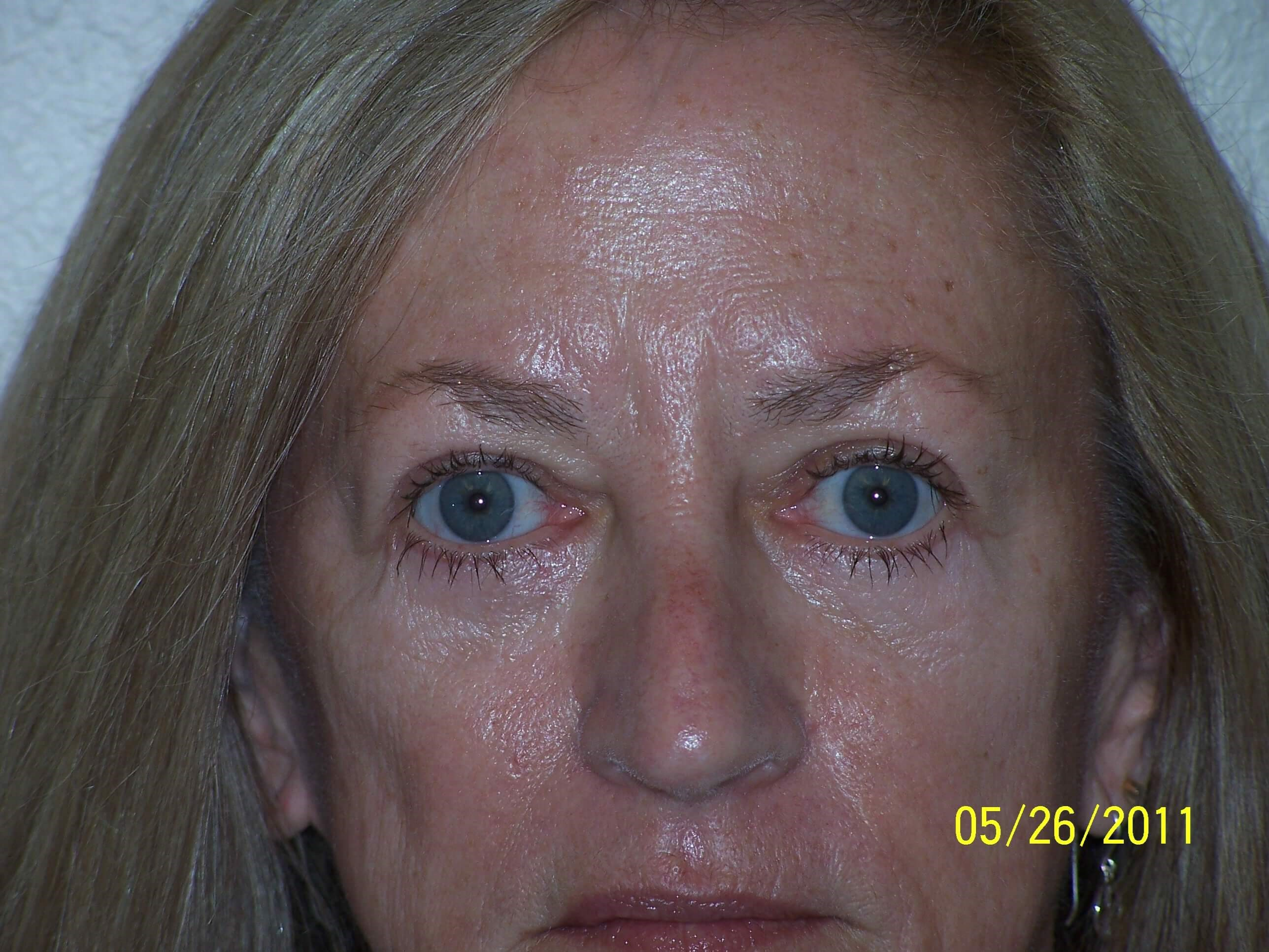 Eyelid surgery/blepharoplasty After