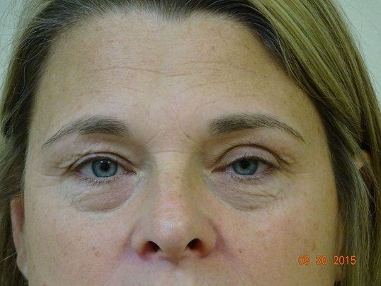 Dr. Sumpter eyelid surgery Before