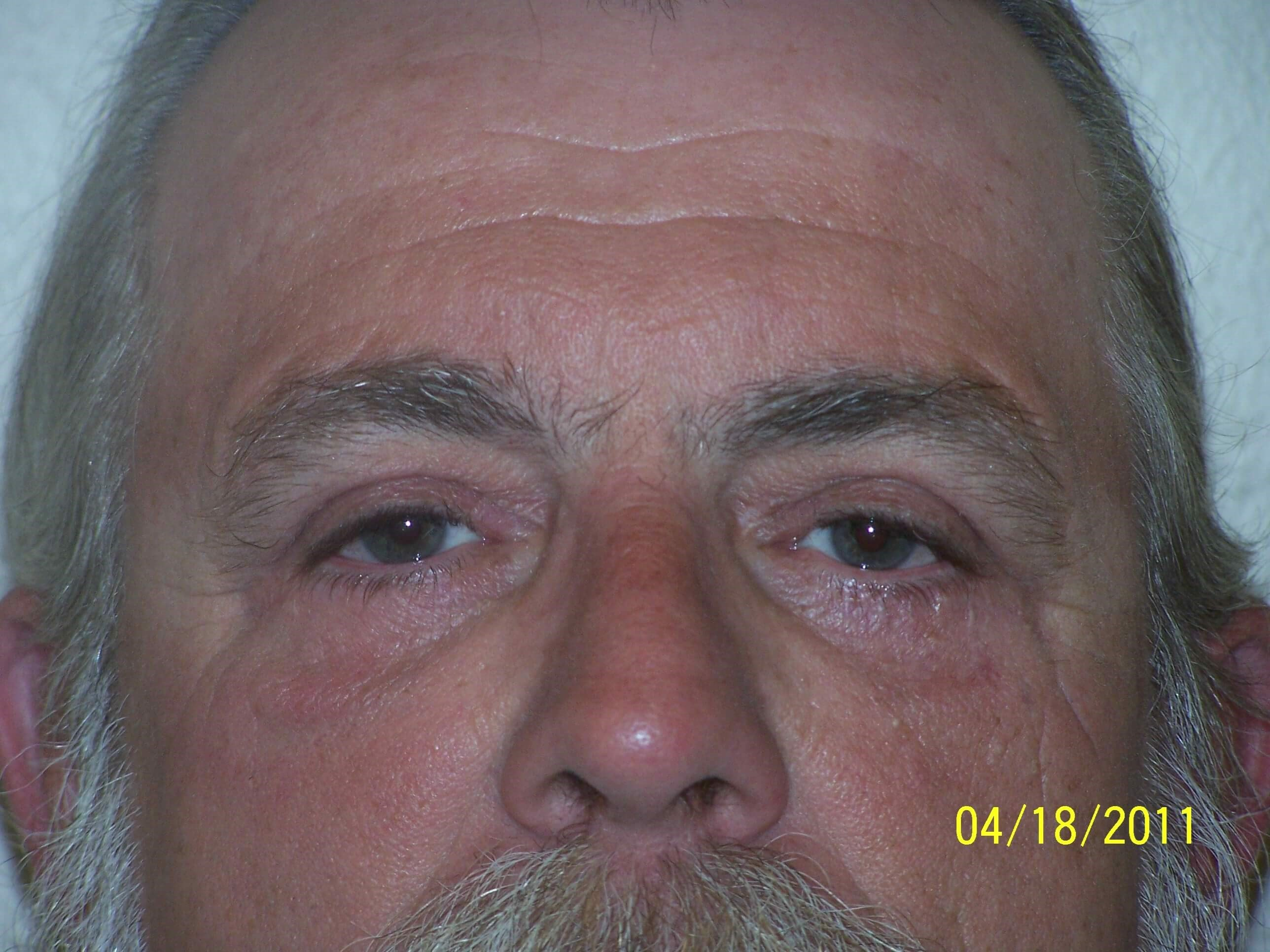 Dr. Sumpter eyelid surgery After