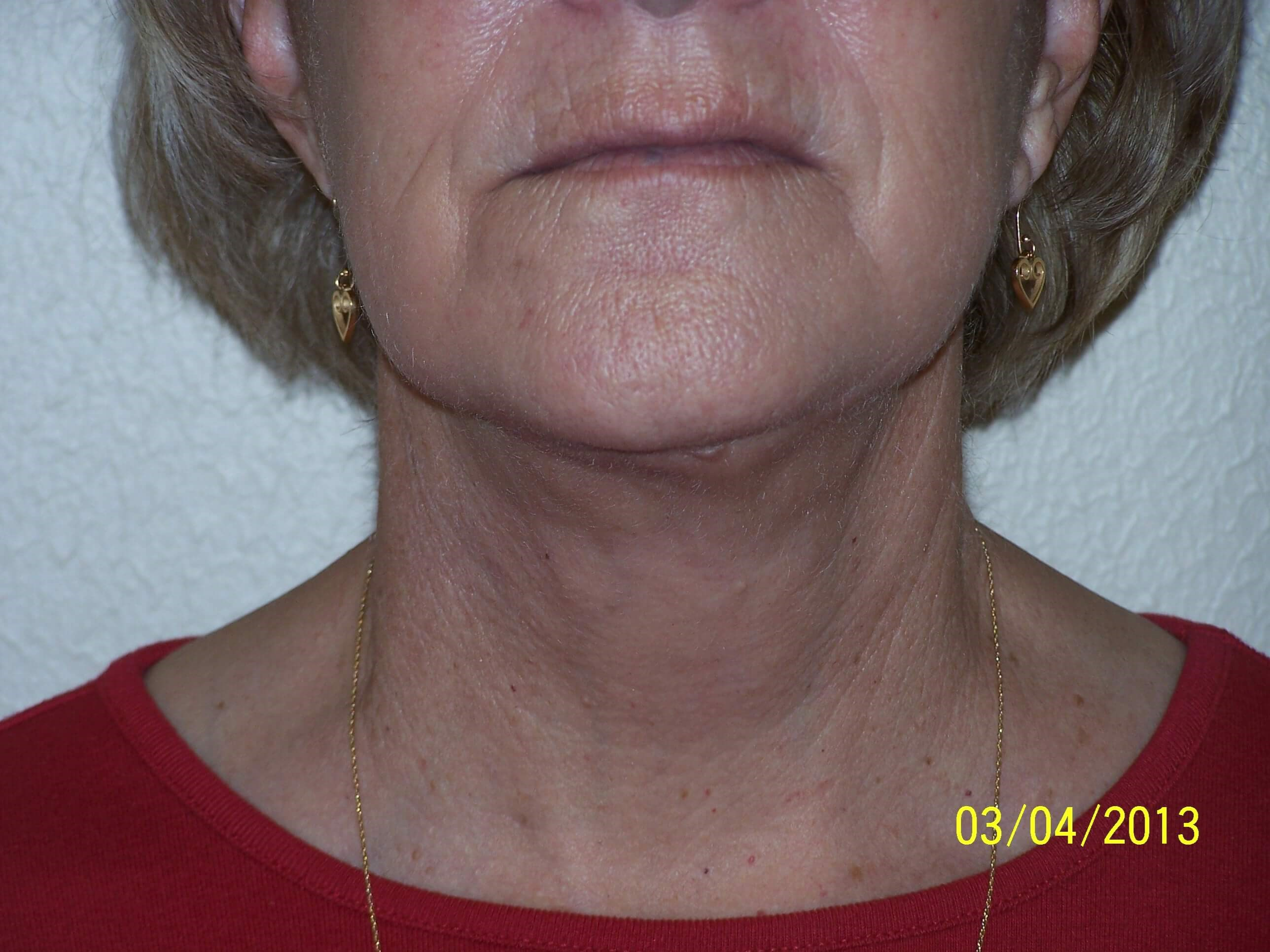 close up of neck After