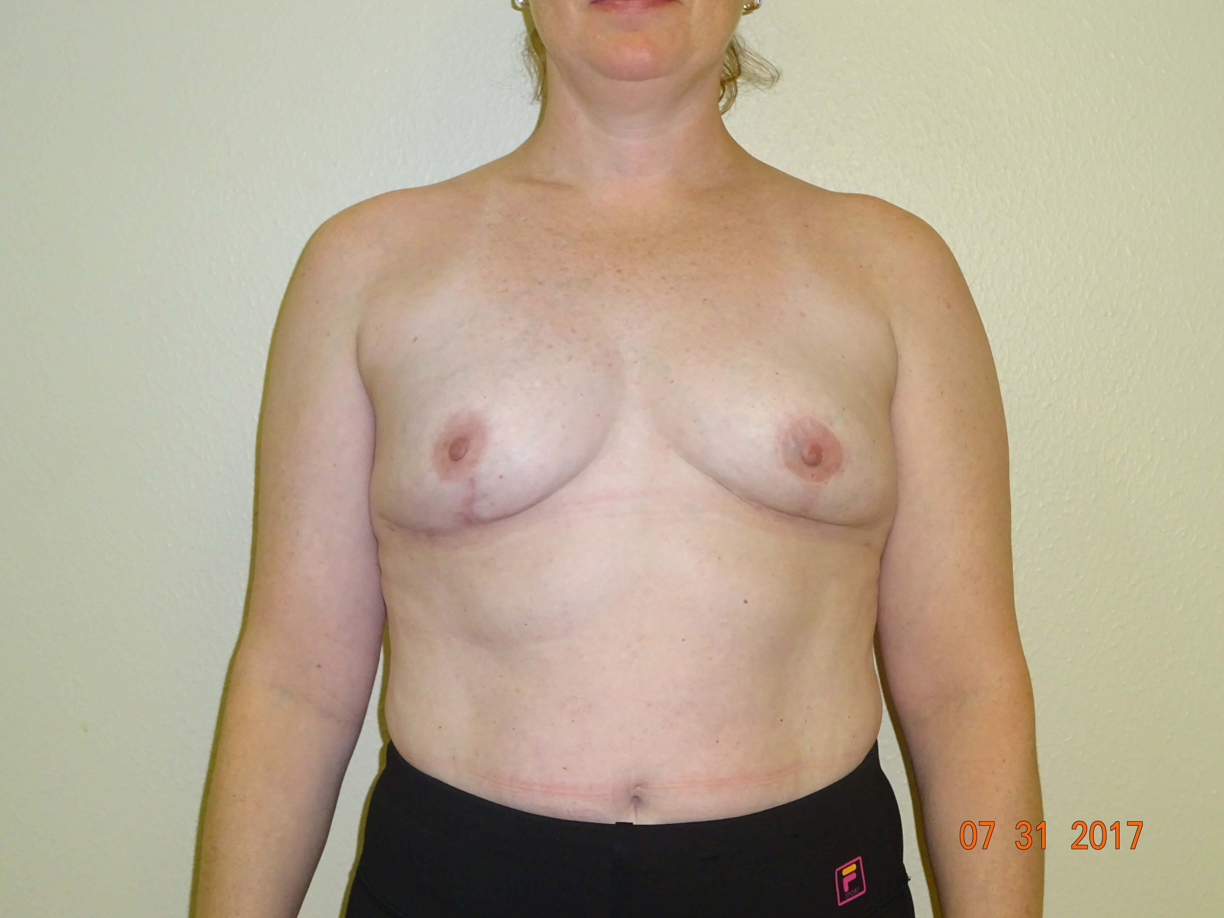 breast lift, implant removal After - 7 mos.