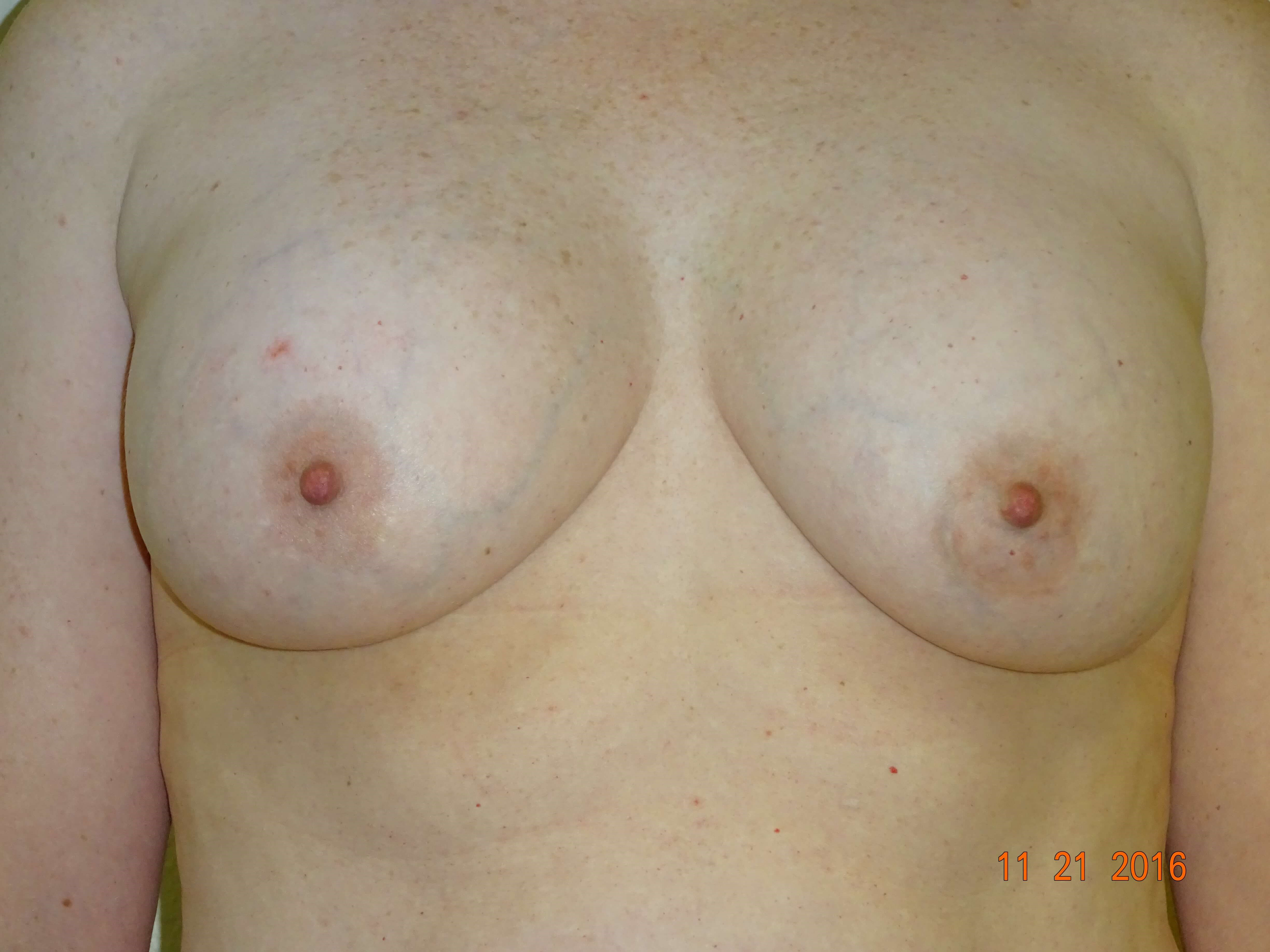breast lift w/ implant removal Before