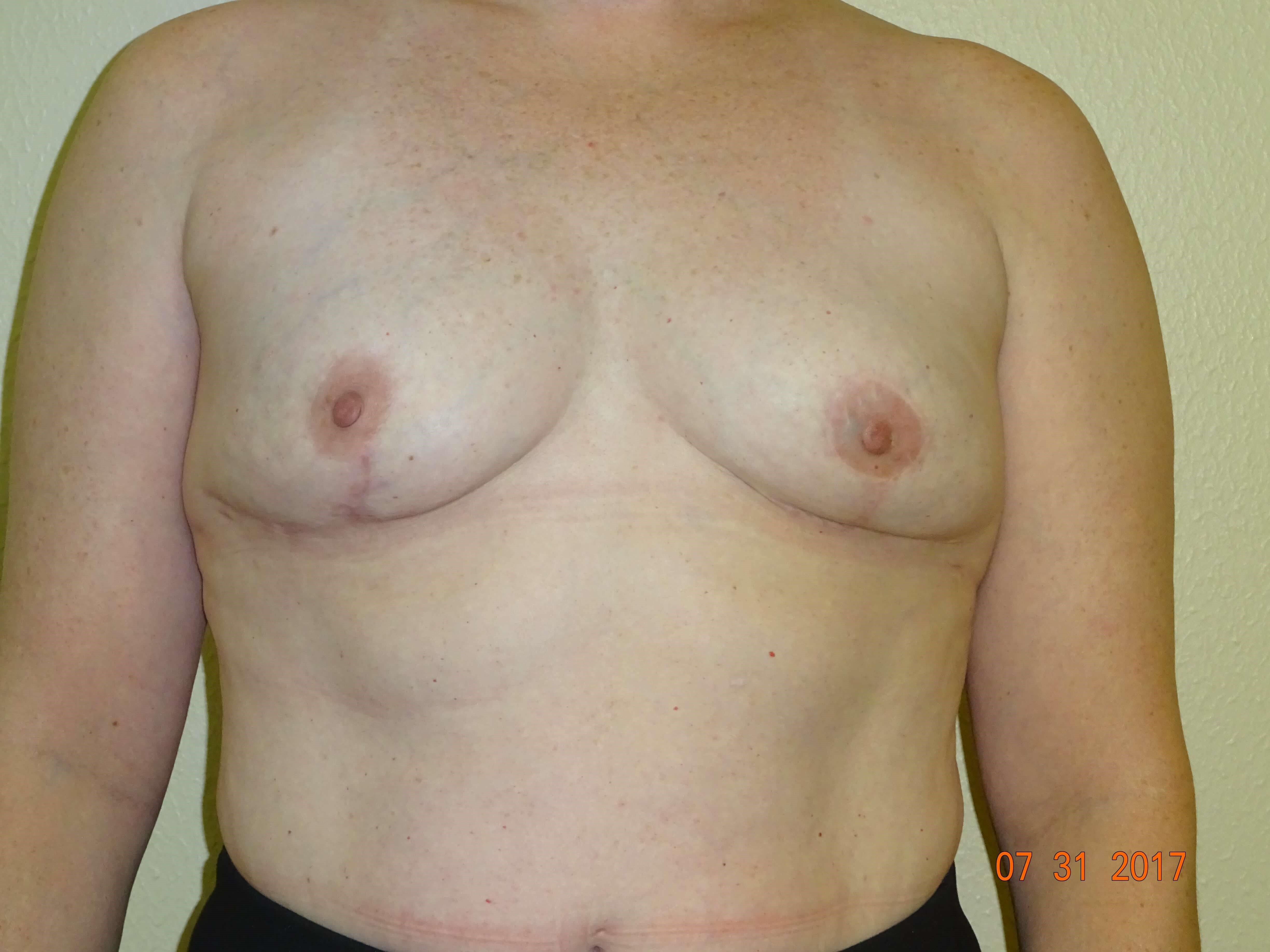 breast lift w/ implant removal After - 7 mos.