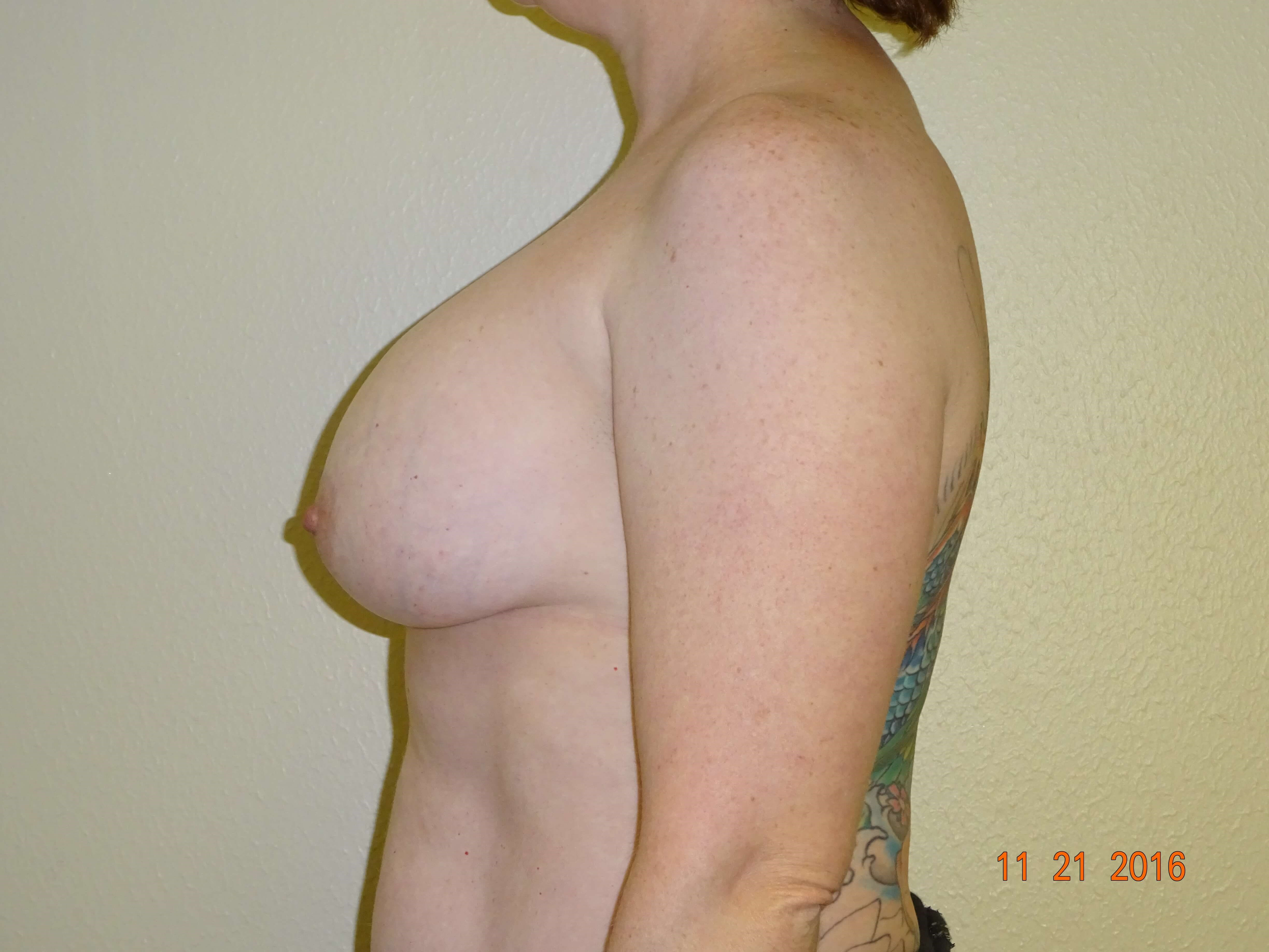 side view, mastopexy, implant Before
