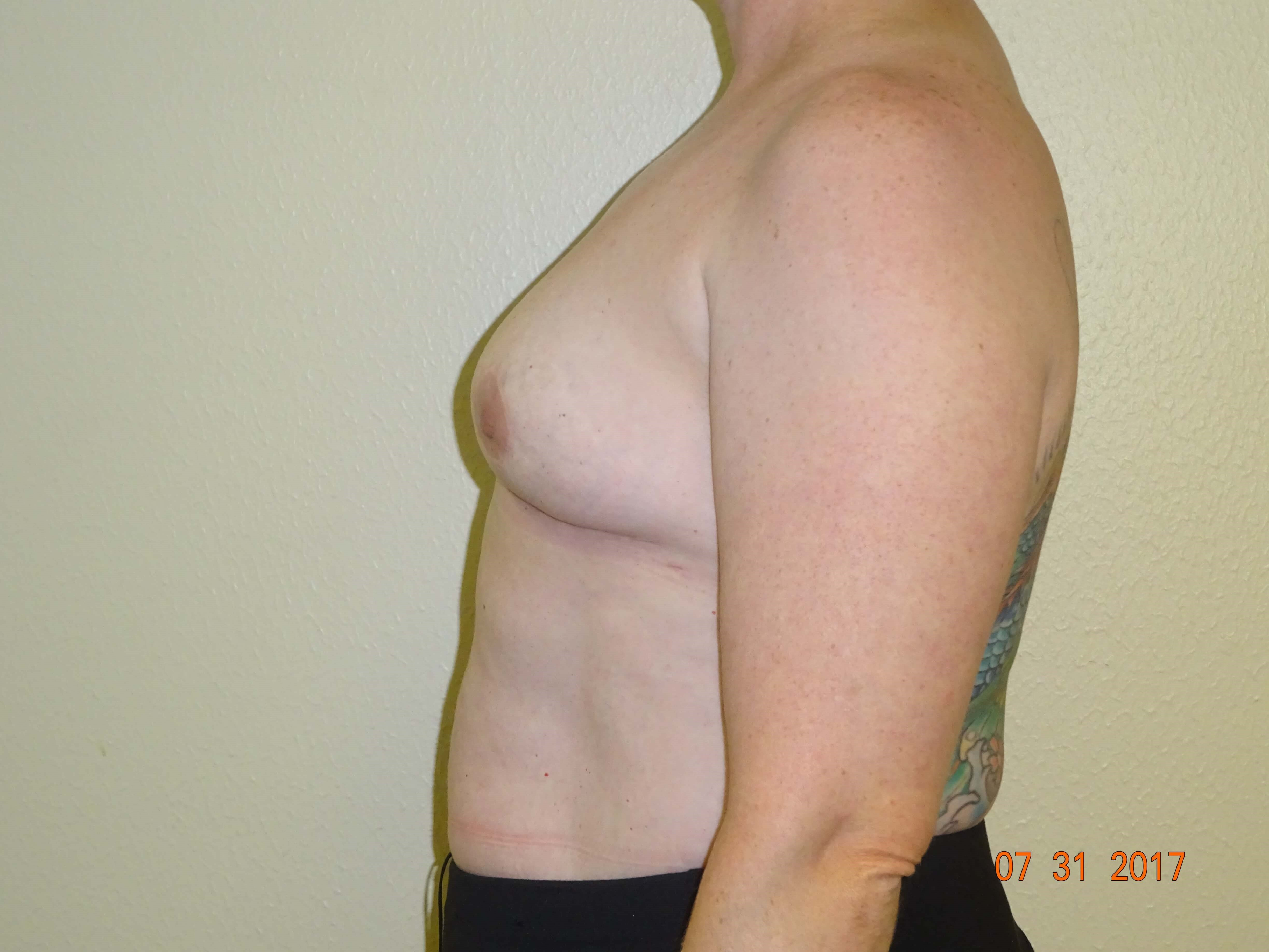 side view, mastopexy, implant After - 7 mos.