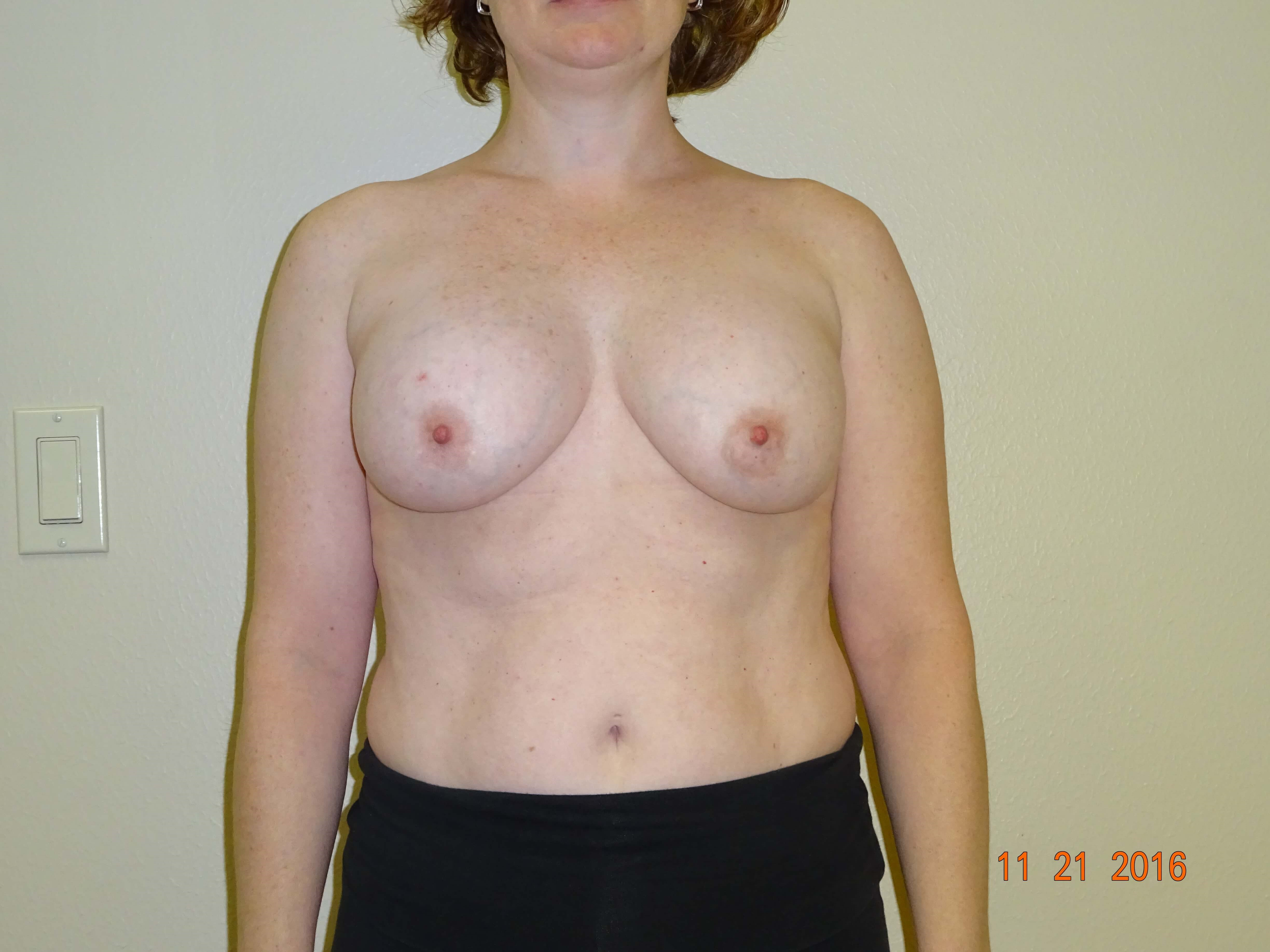 breast lift, implant removal Before