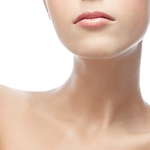 Kybella™ Neck Liposuction Image