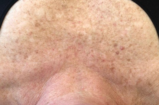 3 Treatments IPL Photofacial After