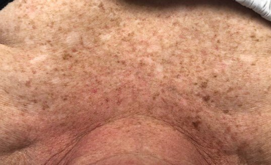3 Treatments IPL Photofacial Before