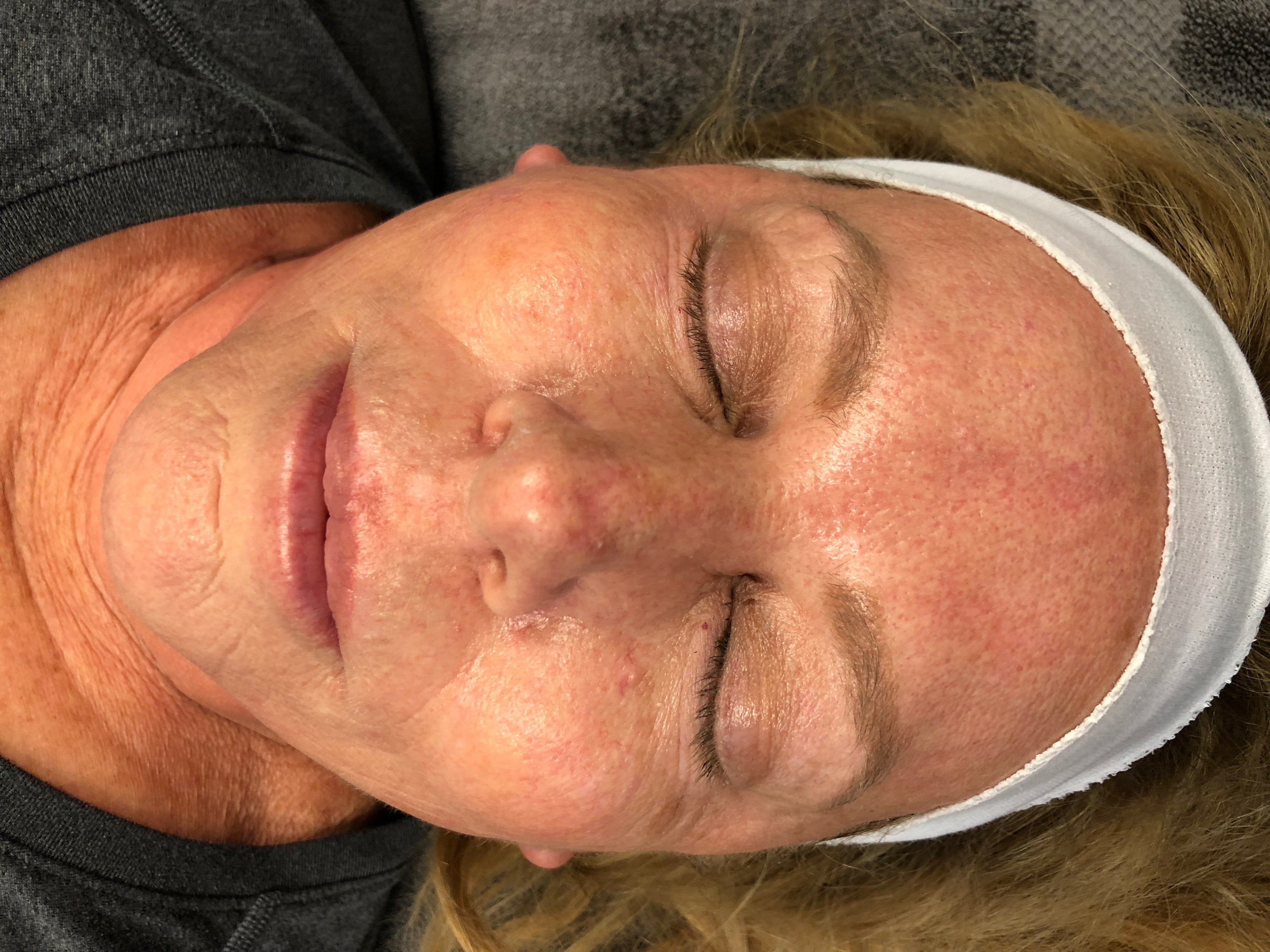 Front View Laser Resurfacing Before