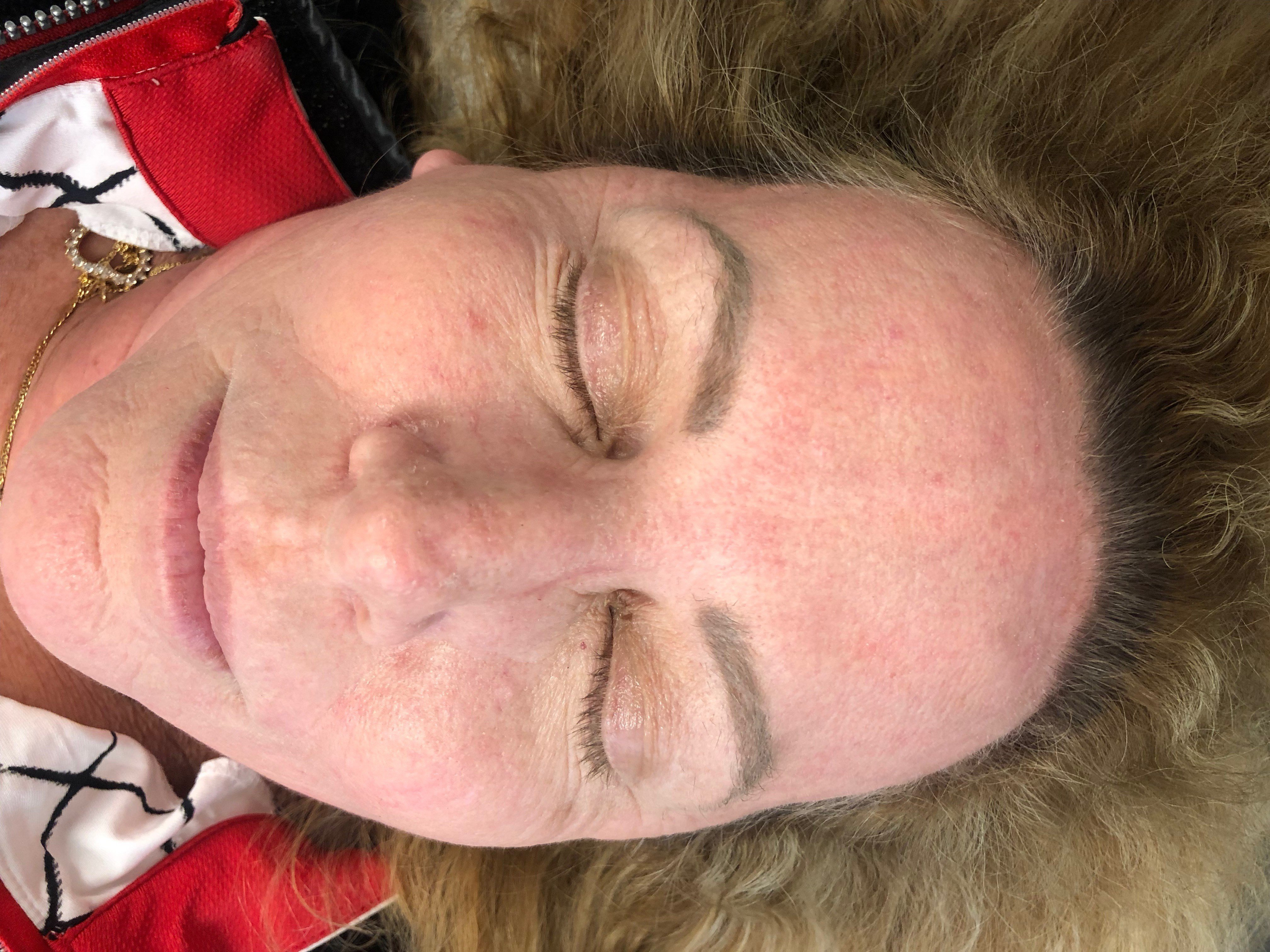 Front View Laser Resurfacing After