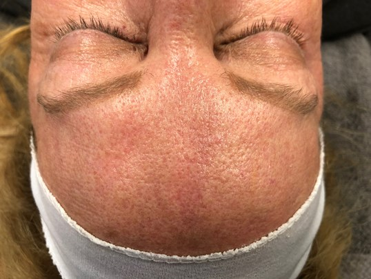 Forehead View Resurfacing Before