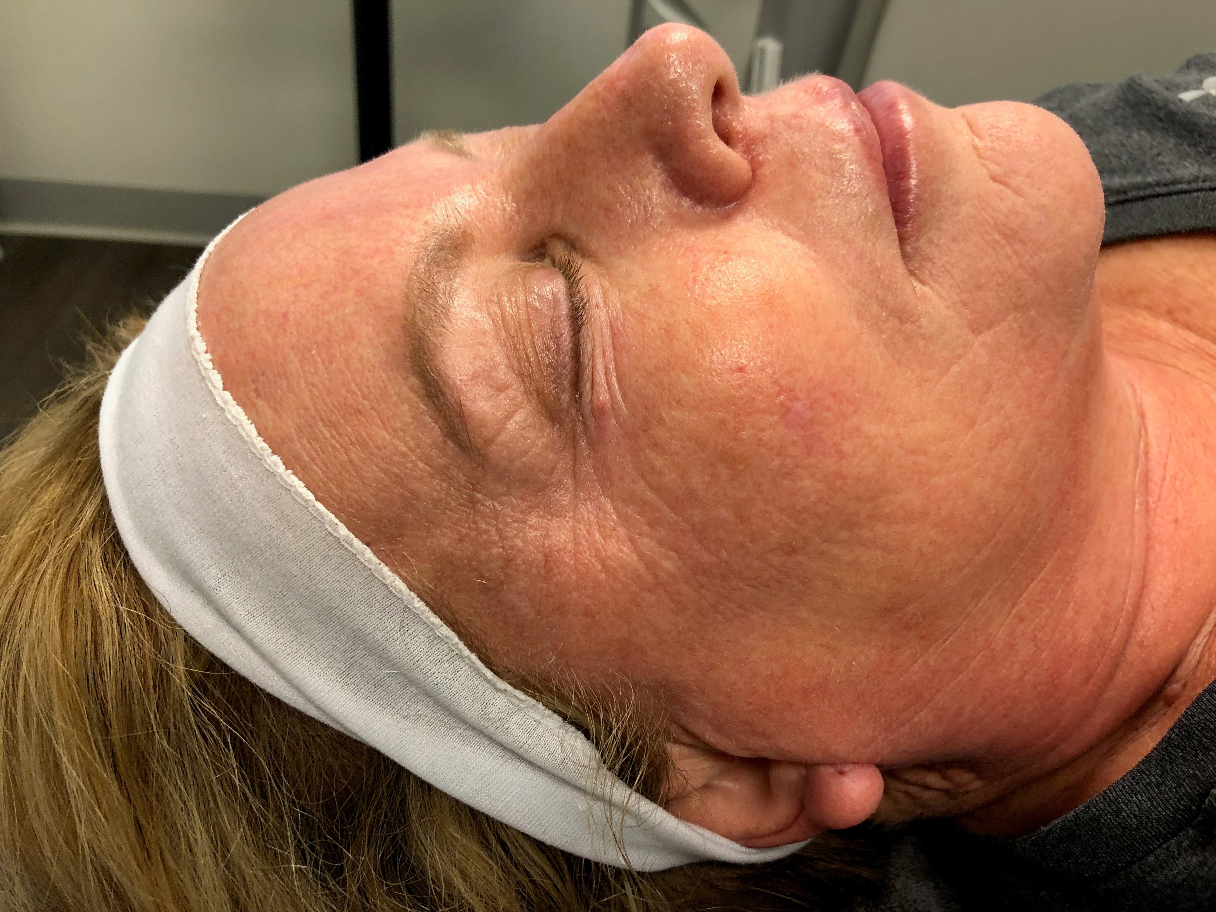 Right View Laser Resurfacing Before