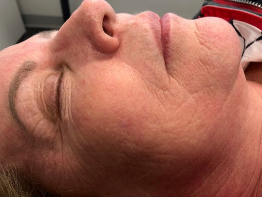 Right View Laser Resurfacing After