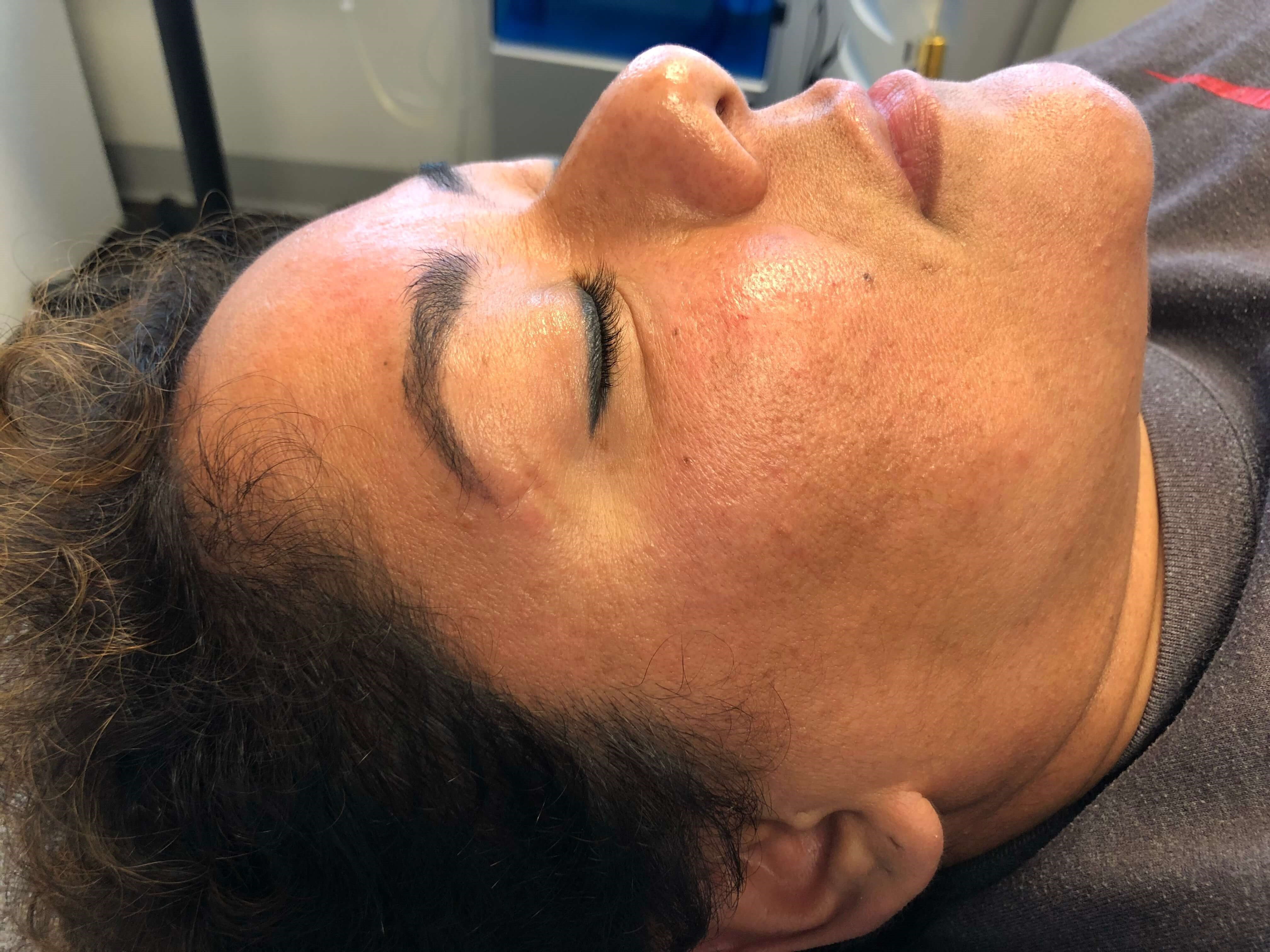 Post 2 IPL treatments After