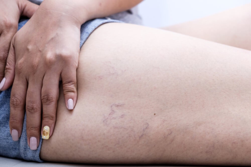 Patient with Varicose Veins