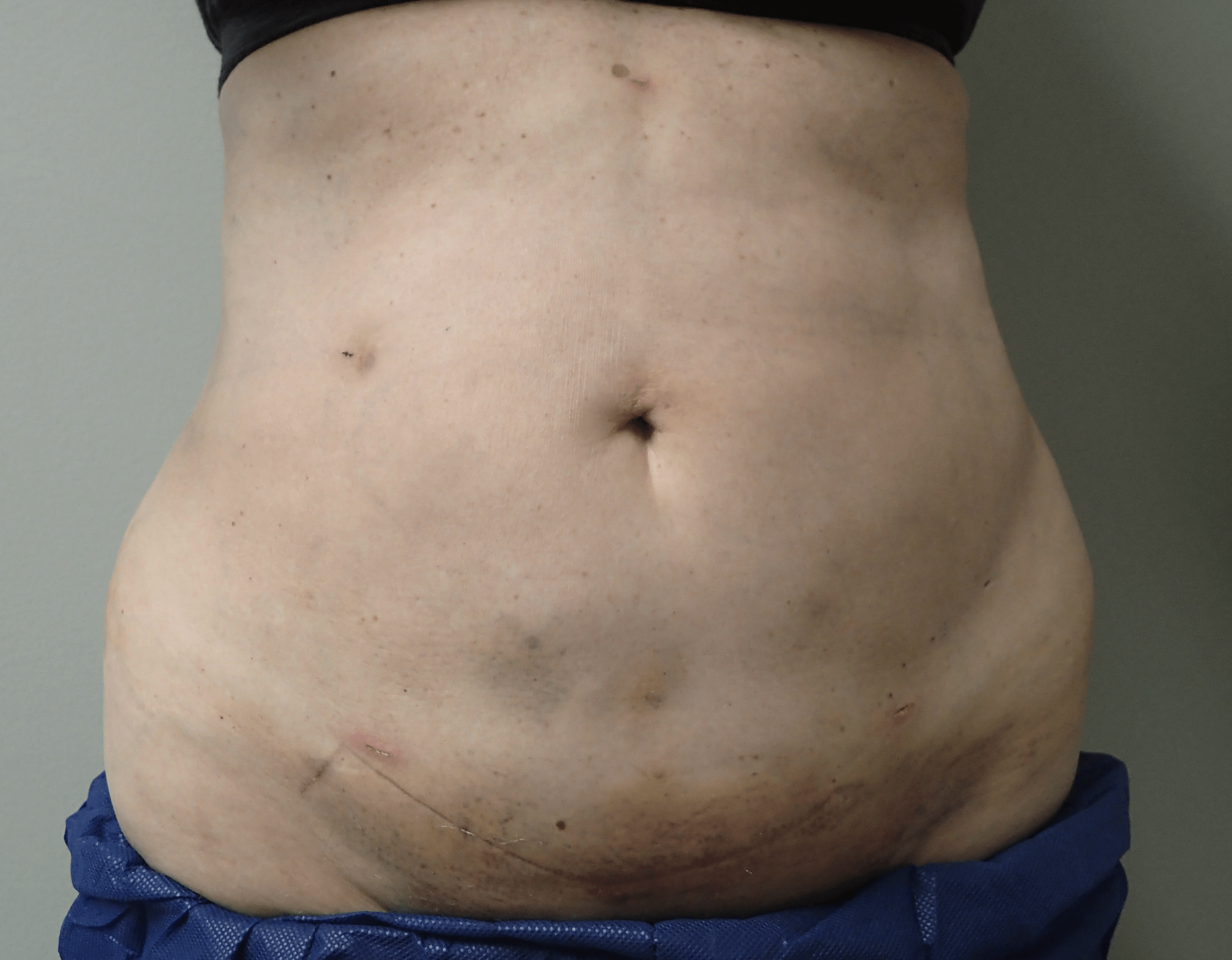 Smartlipo on 61 yo female After (just 6 days later)