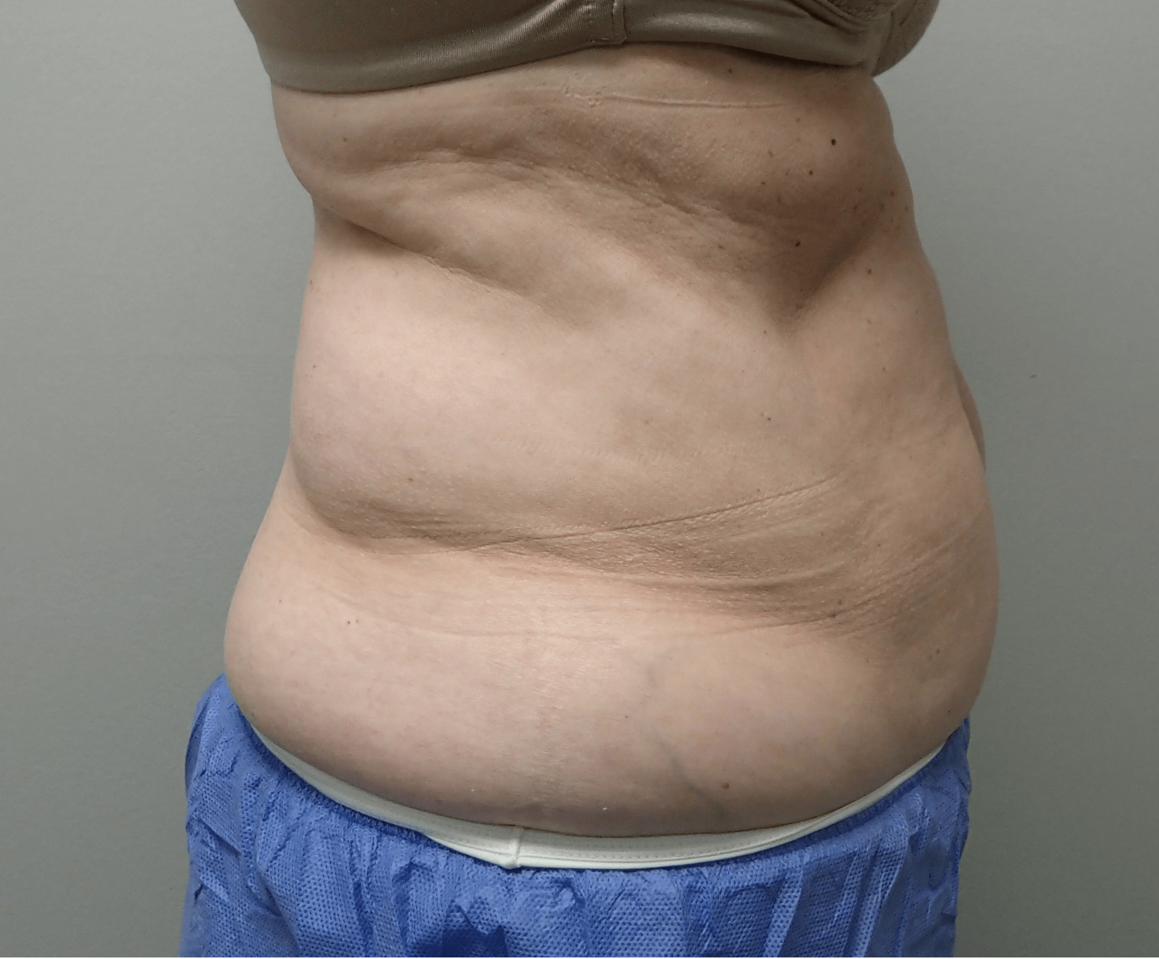 Smartlipo on 61 yo female Before