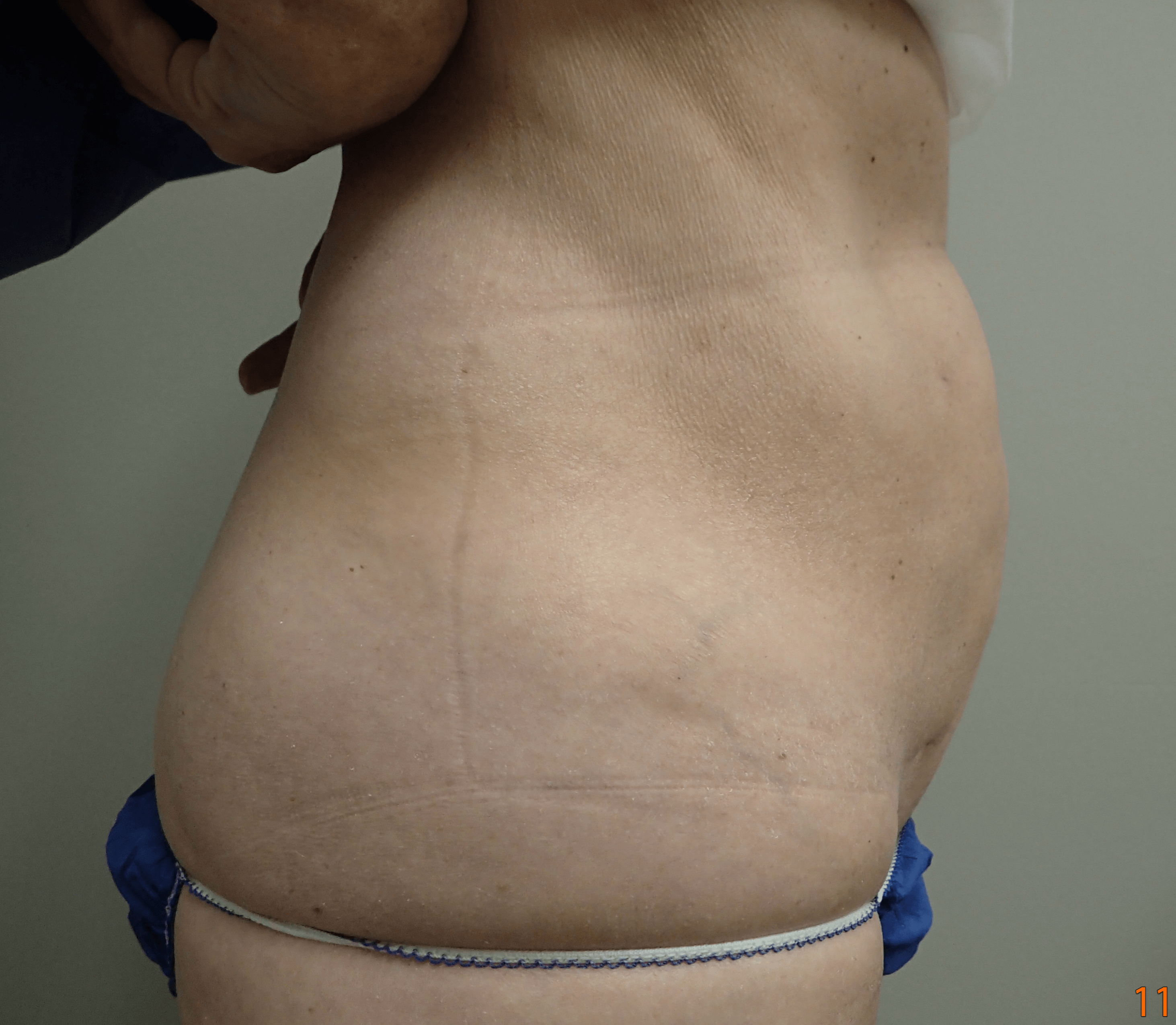 Smartlipo on 61 yo female After
